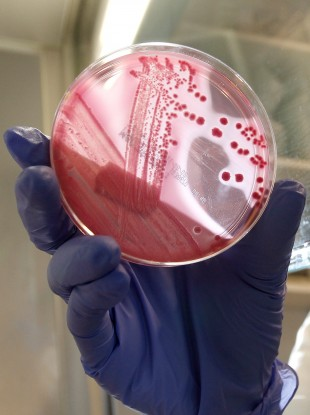 An employee at Hamburg hospital shows a culture of the EHEC bacterium. It's reported that 300 people have fallen sick with the rare complication HUS.