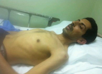 Abdulhadi Al Khawaja on day 57 of his hunger strike