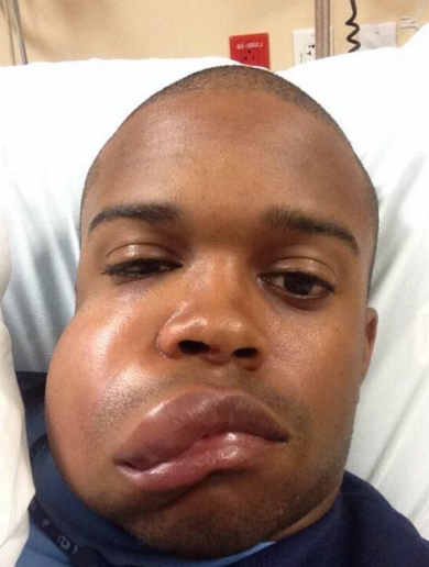 Baseball star shows off severely swollen face after being struck by 90mph fastball